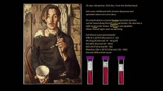 Polycythaemia - The red-faced artist - Full Blood Count Masterclass series