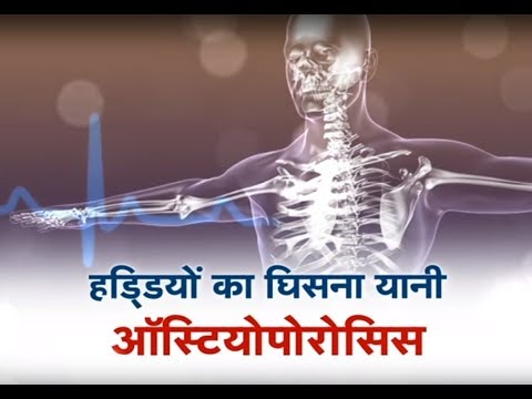 Kaise Hain Aap ? - Osteoporosis special Promo