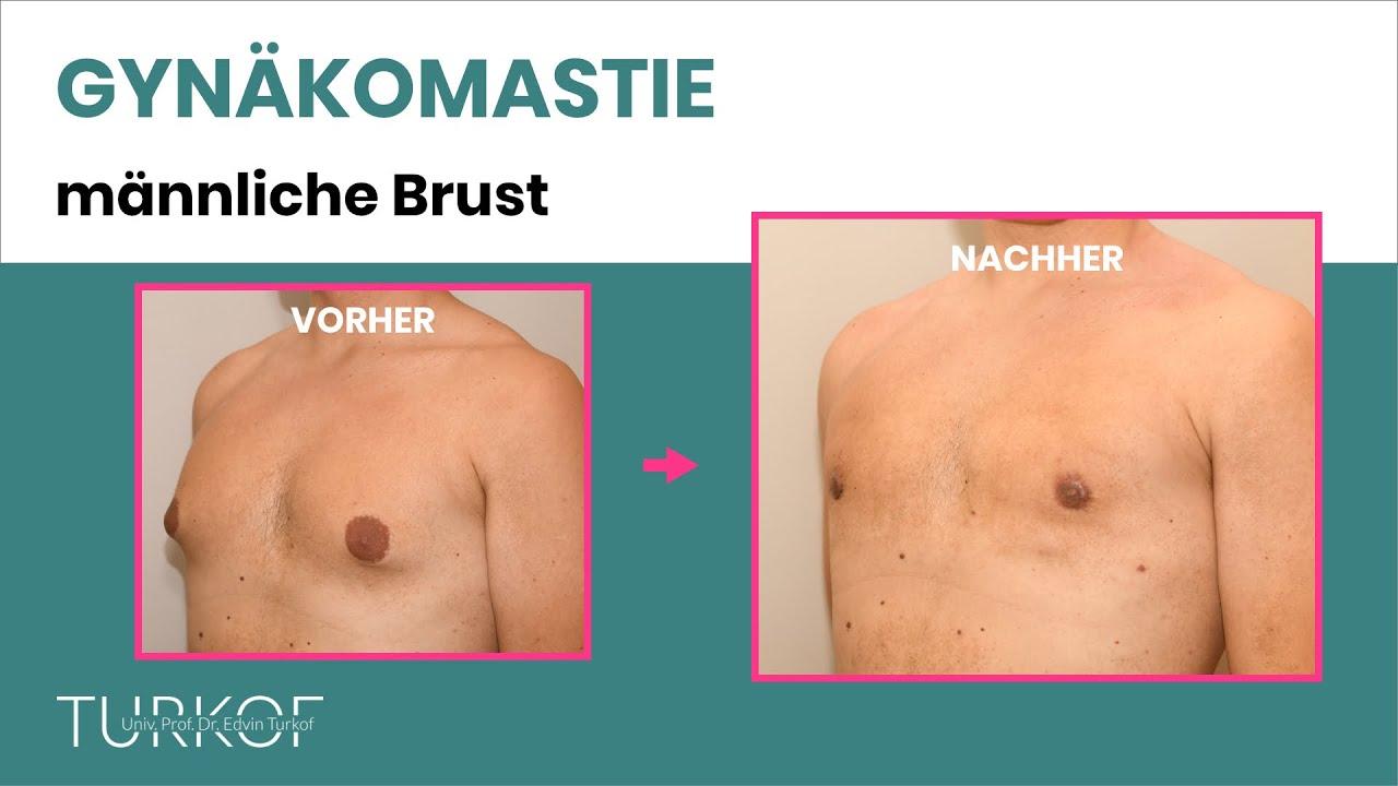 Download Gynäkomastie OP (Männerbrust / Männerbusen) | Schönheitschirurg Univ.-Prof. Dr. Edvin Turkof