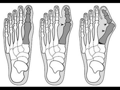Как убрать косточку возле большого пальца на ноге