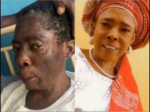 Download Keep Praying For Her: Popular Yoruba Actress, Iyabo Oko Discharged From Hospital