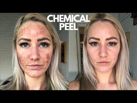 Chemical Peel On Sensitive Skin (NEVER AGAIN!!!)