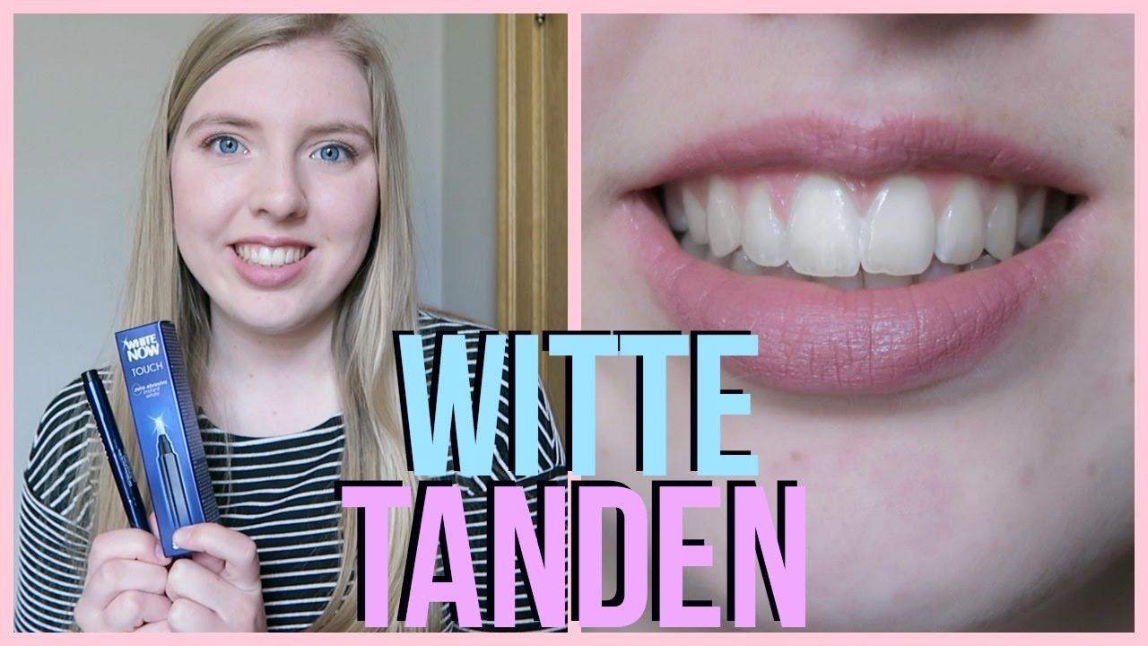 witte tanden stick