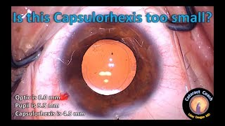 Hydro-delineation if the Capsulorhexis is small in Cataract Surgery
