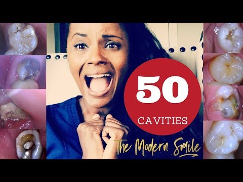 50 Cavities: photos with treatment narrated by dentist