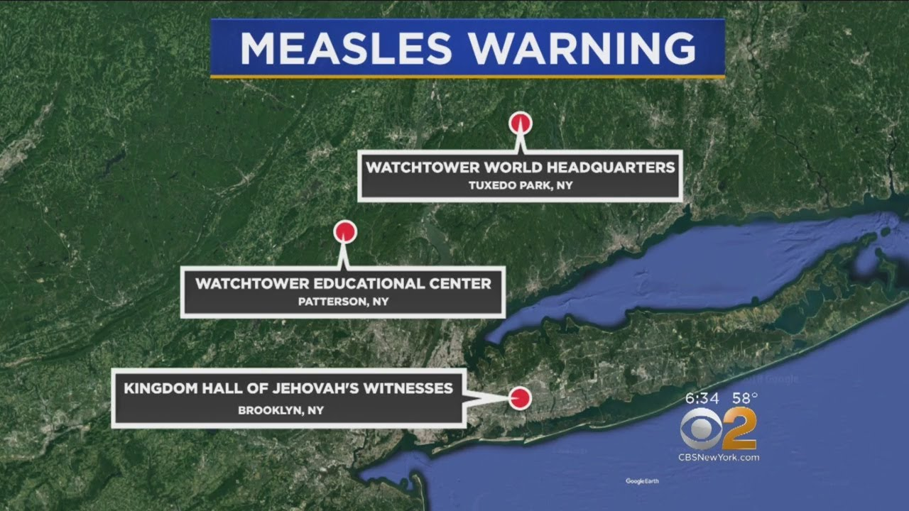 New York State health officials issue measles warning for tri-state area