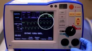 同期カルディオバージョン (R Series Synchronized Cardioversion)