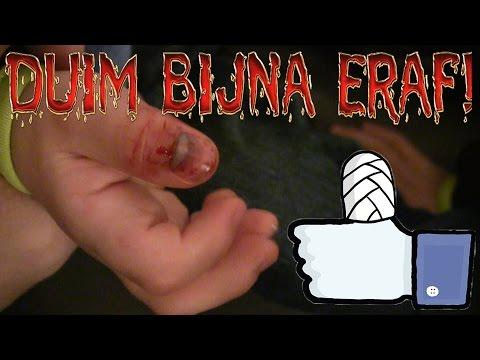 Vlog 145: Duim ligt bijna eraf!