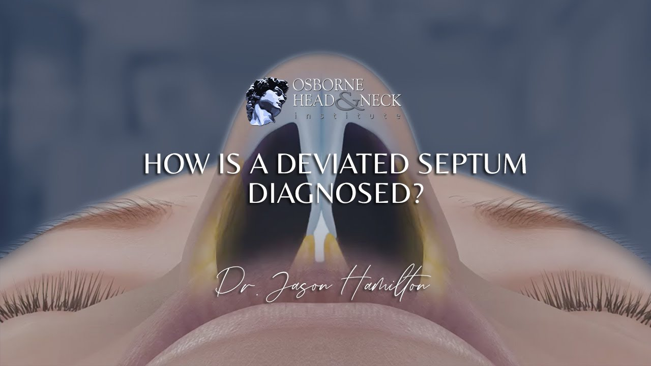 How is a deviated septum diagnosed?