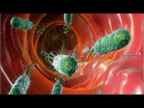 Ревматизм: симптомы, лечение, причины, профилактика
