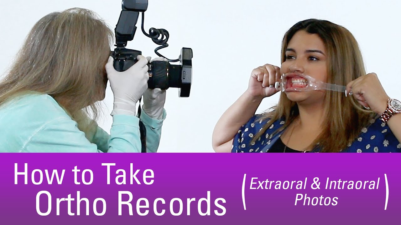 How to Take Orthodontic Records - Step by Step - YouTube