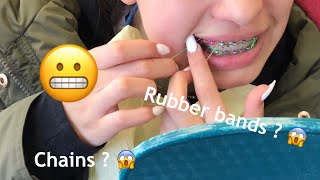 RUBBER BANDS!/chains braces update!😁
