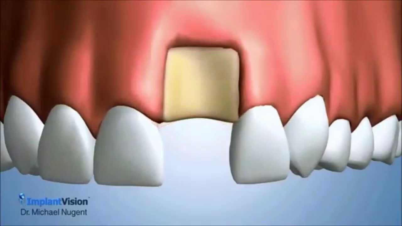 A foundation of adequate bone is an absolute necessity in order for a dental implant to be successful In fact as your oral surgeon determines the prognosis for your