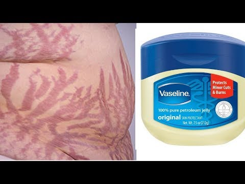 IF ONLY YOU KNEW YOU COULD GET RID OF STRETCH MARKS WITH VASELINE