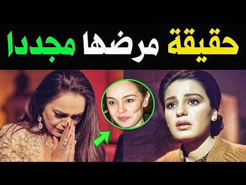 السـرطان يصيب الفنانه شريهان مجددا .. شاهد التشوه الكبير الذي تركه في خدّها رغم عمليات التجميل