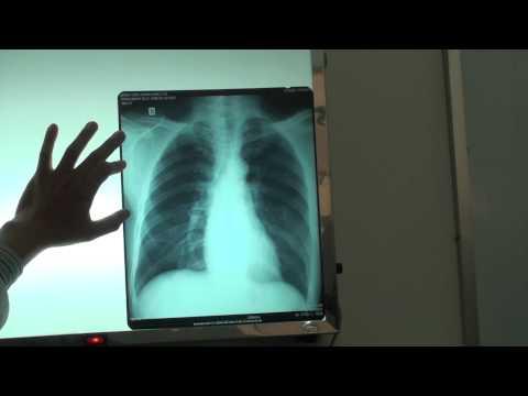 Đánh giá tiêu chuẩn một film chụp X-quang ngực