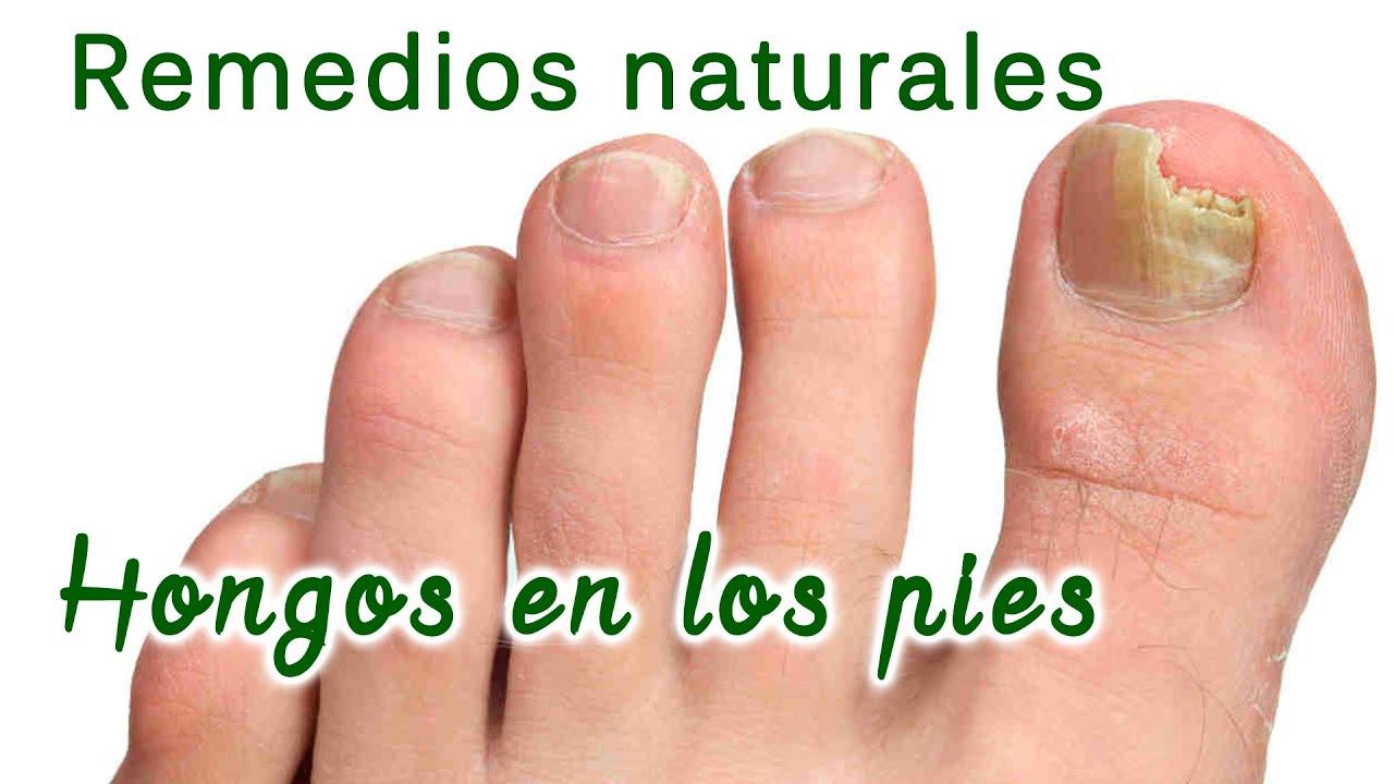 La fase inicial de la enfermedad del hongo sobre las uñas
