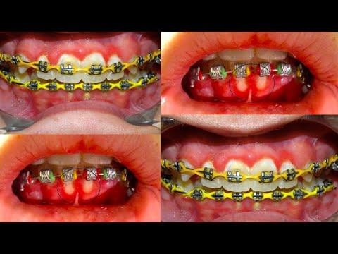 จัดฟันกับโรคเหงือก โรคเหงือกอักเสบ
