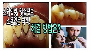 스케일링 / 칫솔질후  소용 없는 치아 착색 해결법! …
