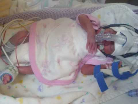 Premature Baby Born At 24 Weeks Precious Chloe Hamon Youtube