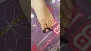 Tırnak batması, tırnak iltihabı ve sülük tedavisi