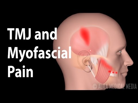 Tmj And Myofascial Pain Syndrome Animation Youtube