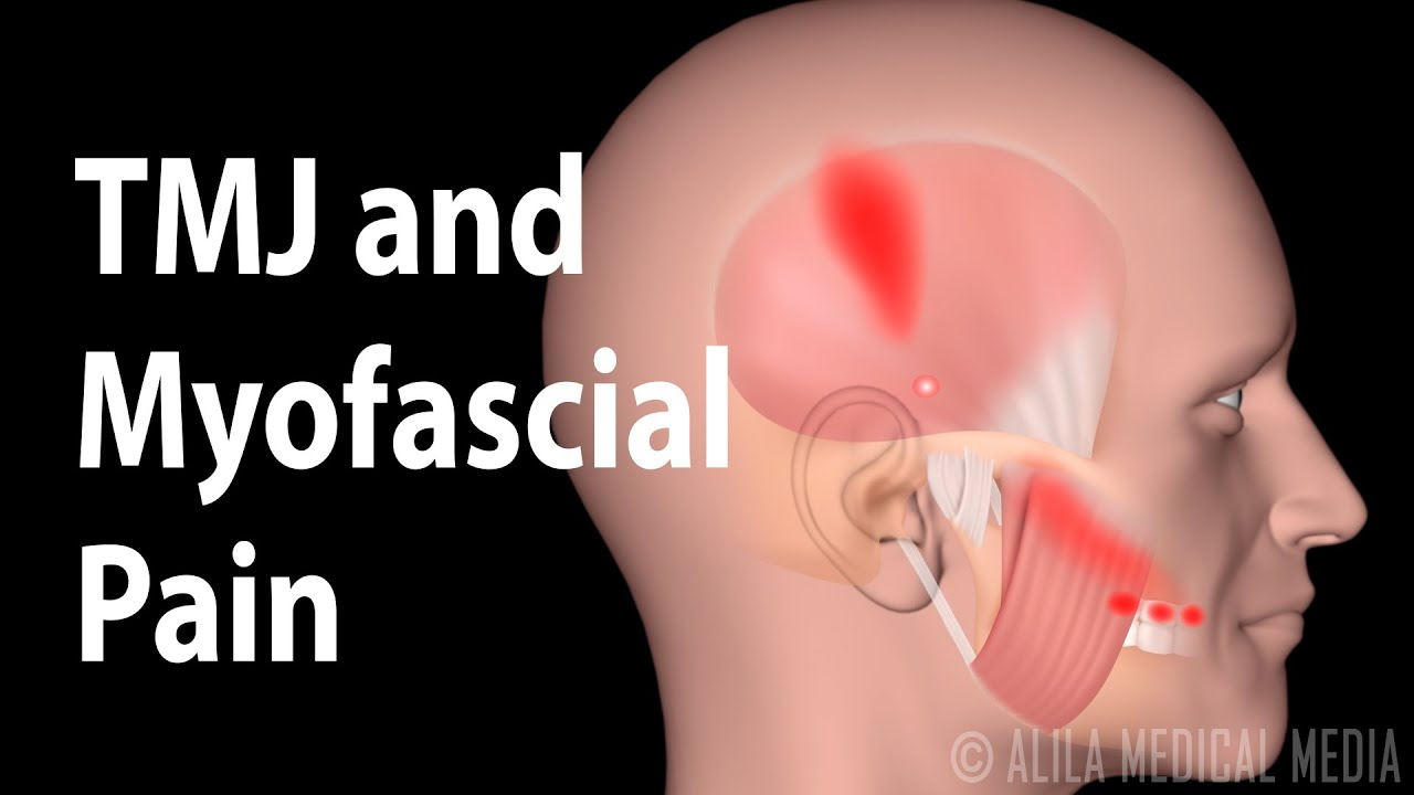 TMJ and Myofascial Pain Syndrome, Animation