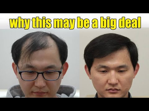 why this may be a big deal? Easy HAIR GROWTH HACKS to Get Long Hair & Turn Thin Hair TO Thick Hair