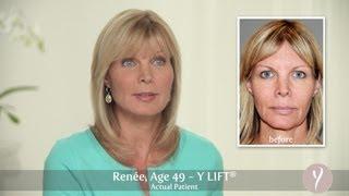 Y LIFT ® 2013 - Renée | Instant, Non Surgical Facelift