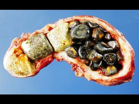 Kidney Liver Cleanse Glytamins Liver Detoxification Gall Bladder