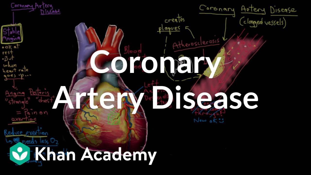 coronary artery disease research papers on the common form of coronary artery disease research papers on the common form of heart disease