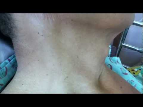 Hepatojugular Reflux Sign