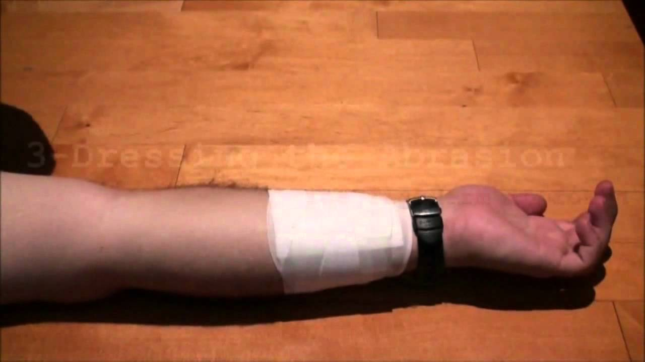 dressing an abrasion youtube