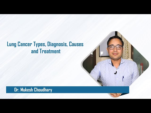 Lung Cancer Types, Diagnosis, Causes and Treatment
