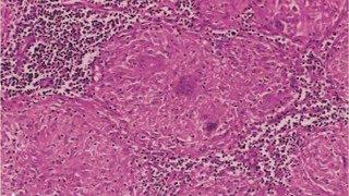 IBLS - Pathology Practical