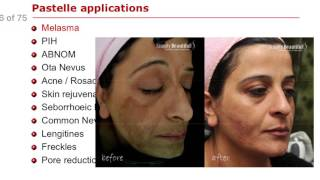 Mirako Spa Laser Toning Melasma Treatment