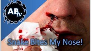 Snake Bites My Nose! SnakeBytesTV : AnimalBytesTV