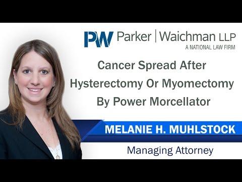 Poliklinika Harni - Ginekološki karcinom tijekom histerektomije i miomektomije