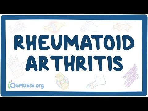 Rheumatoid arthritis - causes, symptoms, diagnosis, treatment, pathology
