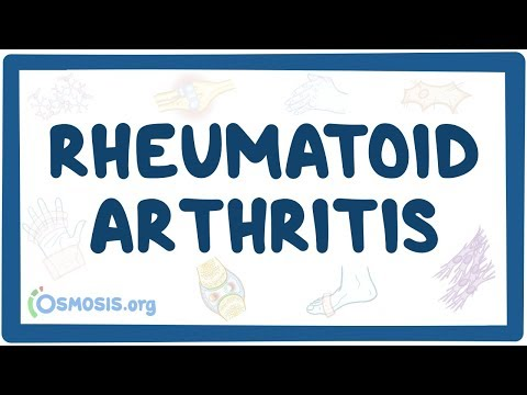 Rheumatoid arthritis - causes symptoms diagnosis treatment pathology