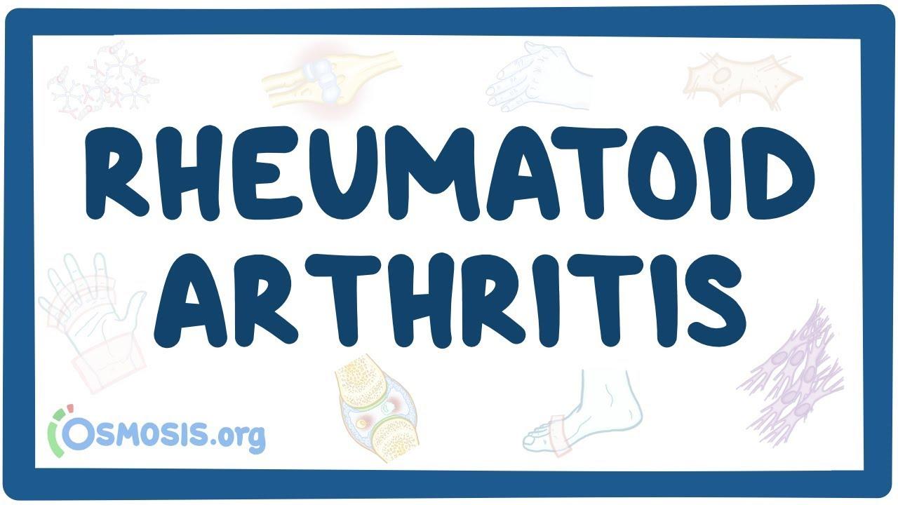 Rheumatoid Arthritis Causes Symptoms Diagnosis Treatment Pathology Youtube