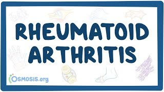 Rheumatoid Arthritis   Causes, Symptoms, Diagnosis, Treatment, Pathology