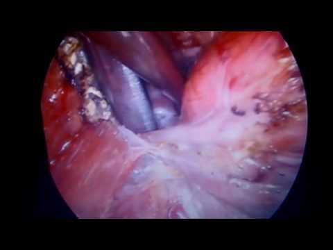 Киста щитовидной железы - опасно ли это? Лечение кисты