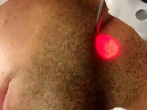 Alexandrite (755 nm wavelength) Laser Hair removal - Medic8