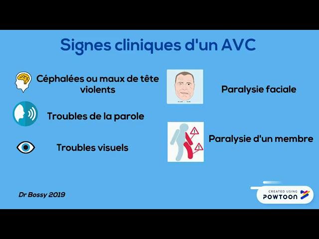 AVC - Faiza Bossy - Société Française de Phlébologie