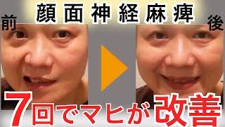 鍼で顔面神経麻痺が改善した例 ベル麻痺 検索動画 4