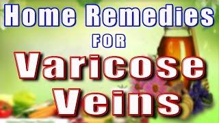 HOME REMEDIES FOR VARICOSE VEINS II वेरीकोस वेइन्स का घरेलू उपचार II