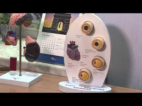 Магистральные артерии, нервные стволы и мышцы переднего