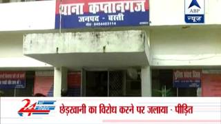 Girl set on fire  in Basti, UP
