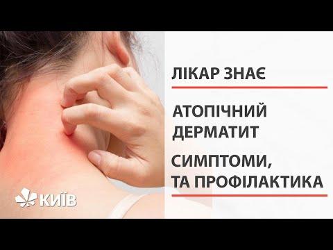 Що є причиною атопічного дерматиту та як цьому запобігти?